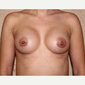 Silicone Implants - Breast Augmentation after 3325055