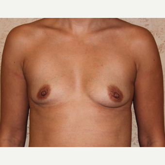 Silicone Implants - Breast Augmentation before 3325055