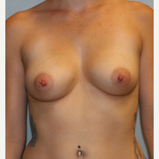 25-34 year old woman treated with Breast Augmentation before 3077035