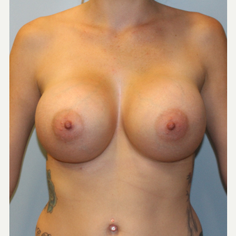 25-34 year old woman treated with Breast Augmentation after 3077035