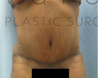 45-54 year old woman treated with Tummy Tuck after 3092713