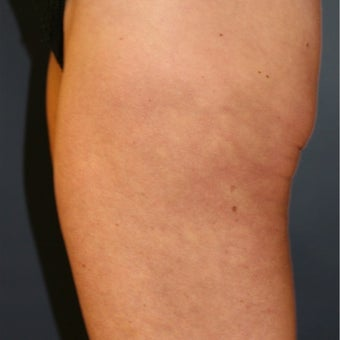 50 year old woman before and 8 mos. after ThermiTight of thighs for cellulite and loose skin after 2514569
