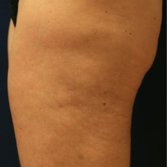 50 year old woman before and 8 mos. after ThermiTight of thighs for cellulite and loose skin before 2514569