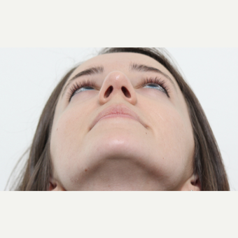 25-34 year old woman treated with Rhinoplasty after 3365924