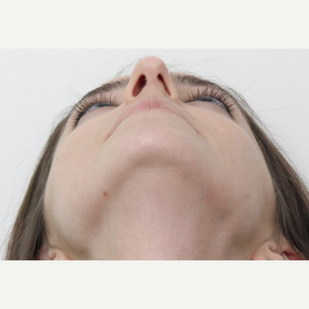 25-34 year old woman treated with Rhinoplasty before 3365924