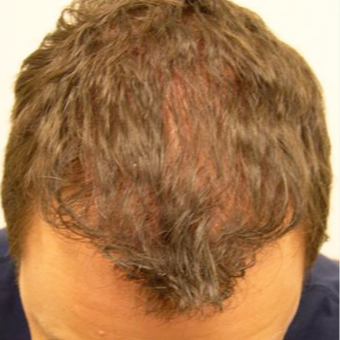33 year old man treated with FUE Hair Transplant after 3564710