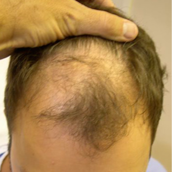 33 year old man treated with FUE Hair Transplant before 3564710