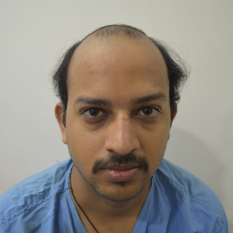25-34 year old man treated with Hair Transplant before 2723500