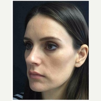 35-44 year old woman treated with Rhinoplasty before 3046989
