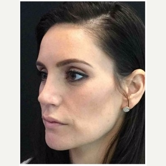 35-44 year old woman treated with Rhinoplasty after 3046989