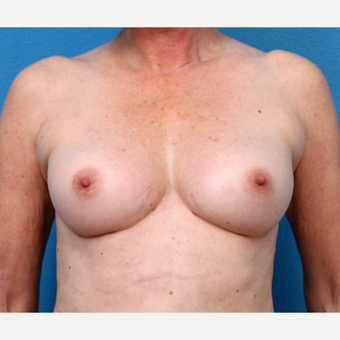 55-64 year old woman treated with Fat Transfer after 3218956