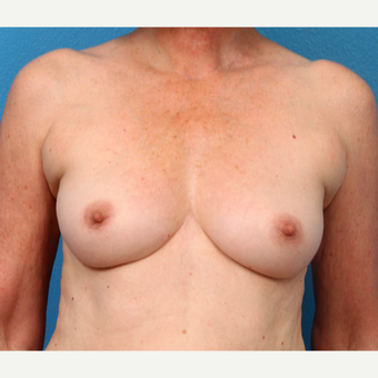 55-64 year old woman treated with Fat Transfer before 3218956