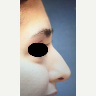 25-34 year old woman treated with Rhinoplasty before 3204871