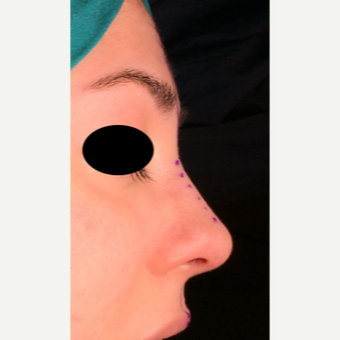 25-34 year old woman treated with Rhinoplasty after 3204871