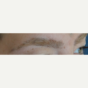 18-24 year old woman treated with Hair Transplant after 3066752