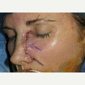 25-34 year old woman treated with Mohs Surgery before 3389212