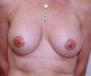 Female Breast Augmentation after 1302524