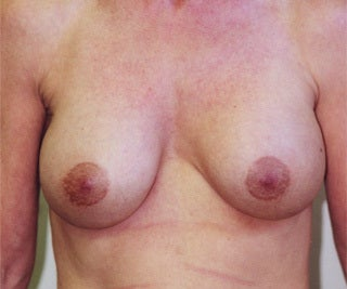 Female Breast Augmentation before 1302524