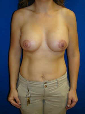 Breast Lift with Implants after 143641