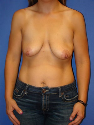Breast Lift with Implants before 143641
