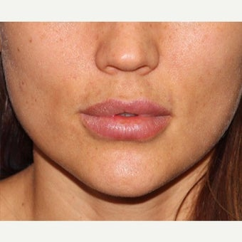 31 year old woman treated lip augmentation correction