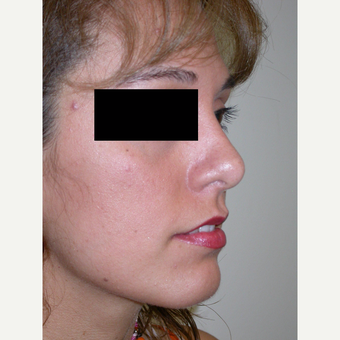18-24 year old woman treated with Rhinoplasty after 3743208