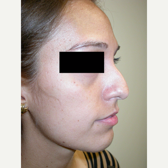 18-24 year old woman treated with Rhinoplasty before 3743208