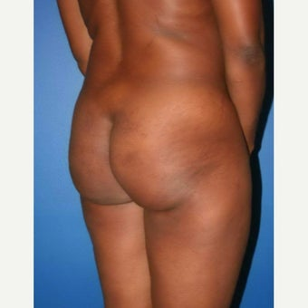 35-44 year old woman treated with Brazilian Butt Lift before 2171919