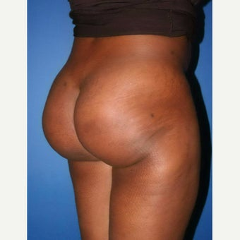35-44 year old woman treated with Brazilian Butt Lift after 2171919