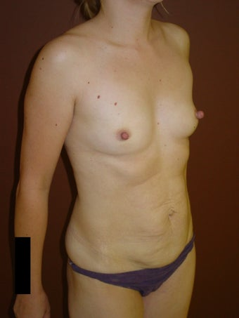 Breast augmentation before 600149
