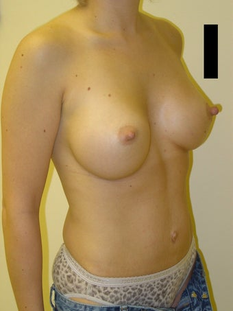 Breast augmentation after 600149