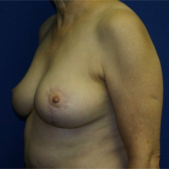 55-64 year old woman treated with Breast Lift 1969146