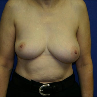 55-64 year old woman treated with Breast Lift before 1969146