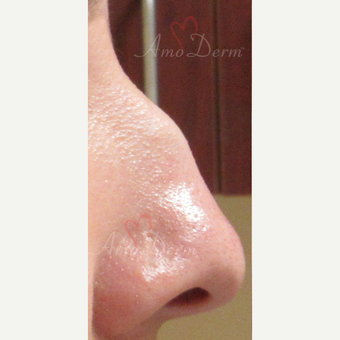 25-34 year old woman treated with Voluma for non-surgical nose job before 3381461