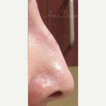 25-34 year old woman treated with Voluma for non-surgical nose job after 3381461