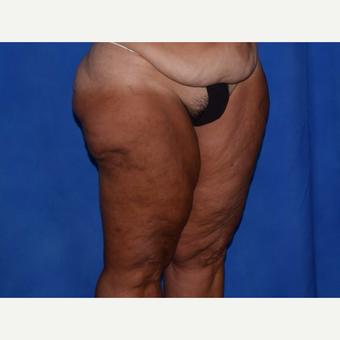 45-54 year old woman treated with Thigh Lift before 3755285