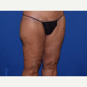 45-54 year old woman treated with Thigh Lift after 3755285