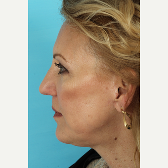 55-64 year old woman treated with Facelift after 3691416