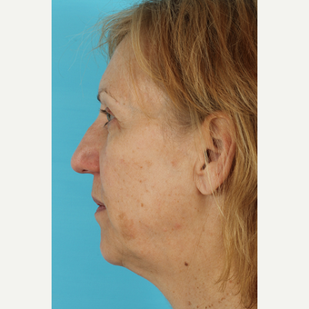 55-64 year old woman treated with Facelift before 3691416