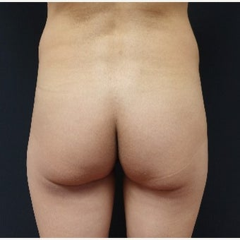 35-44 year old woman treated with 548cc Silicone Butt Implants before 2560719