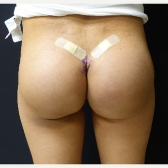 35-44 year old woman treated with 548cc Silicone Butt Implants after 2560719