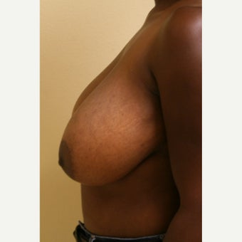 35-44 year old woman treated with Breast Reduction before 2046206
