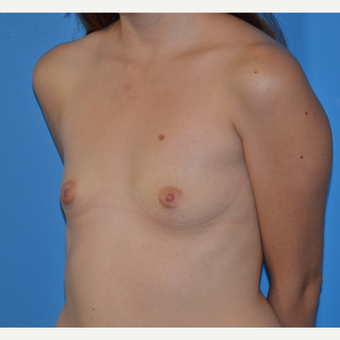 25-34 year old woman treated with Breast Augmentation before 3174044
