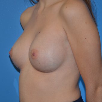 25-34 year old woman treated with Breast Augmentation after 3174044