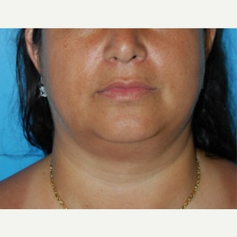 35-44 year old woman treated Buccal Fat Removal before 1606115