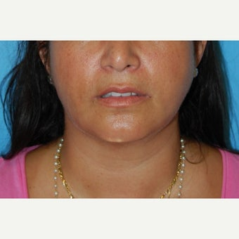 35-44 year old woman treated Buccal Fat Removal after 1606115