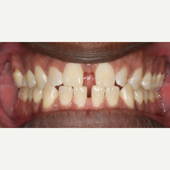 35-44 year old man treated with Invisalign before 3188507