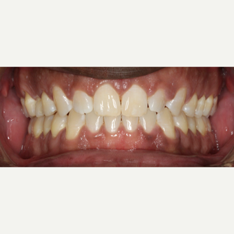 35-44 year old man treated with Invisalign after 3188507