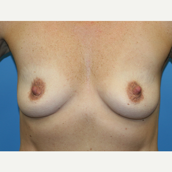 43 year old woman treated with Breast Augmentation before 3486838