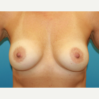 43 year old woman treated with Breast Augmentation after 3486838